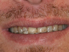 Full-mouth rehabilitation with crowns